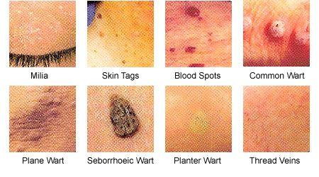 human papillomavirus warts on face)