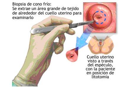 papiloma humano tiene tratamiento