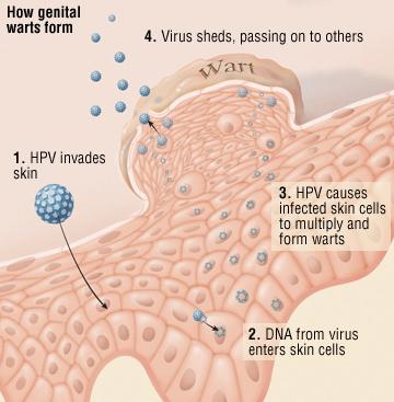 human papilloma virus signs and symptoms)