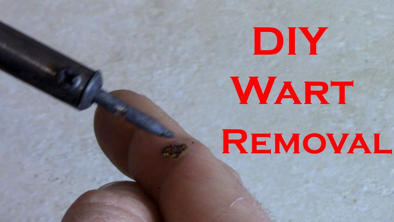 warts on hands you tube)