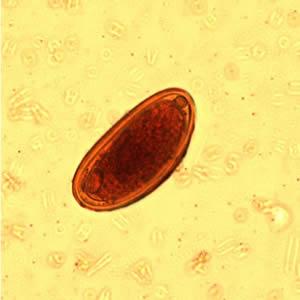 lp1 parazitologie
