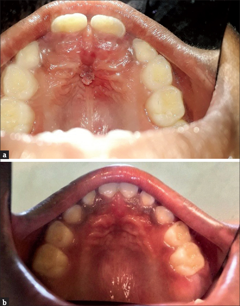 squamous papilloma recurrence