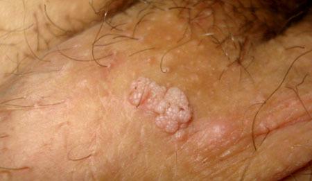 verrugas papiloma genitales)
