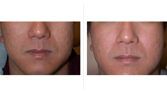 wart laser treatment cost