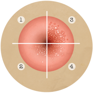 traitement du papillomavirus au laser