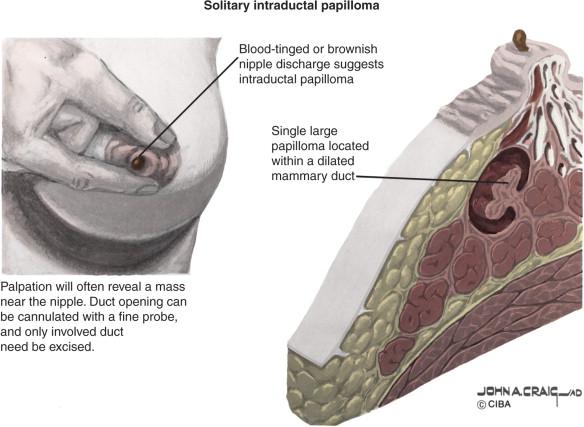 how fast do intraductal papillomas grow