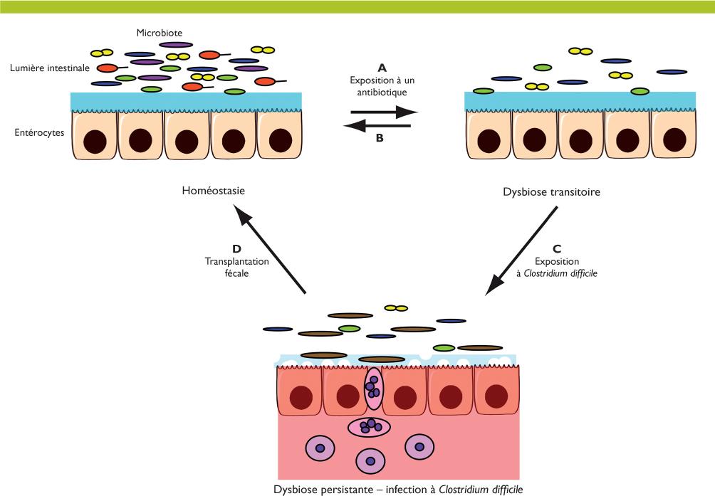 toxine de clostridium difficile