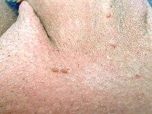 papillomavirus bei frauen)