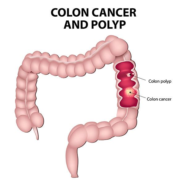 colorectal cancer overview)