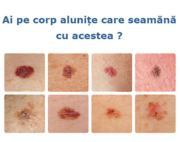 cancerul de piele cu mancarimi)