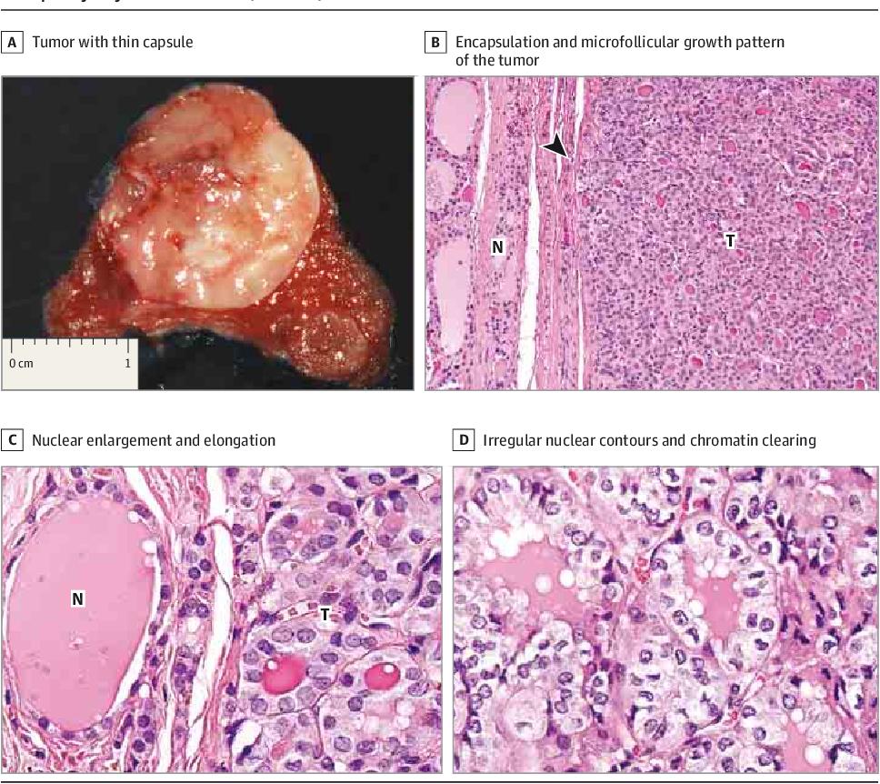 papillary thyroid cancer follicular type