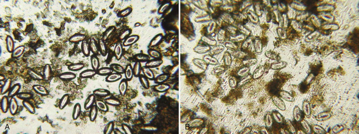 Parazitologie - Enterobius vermicularis