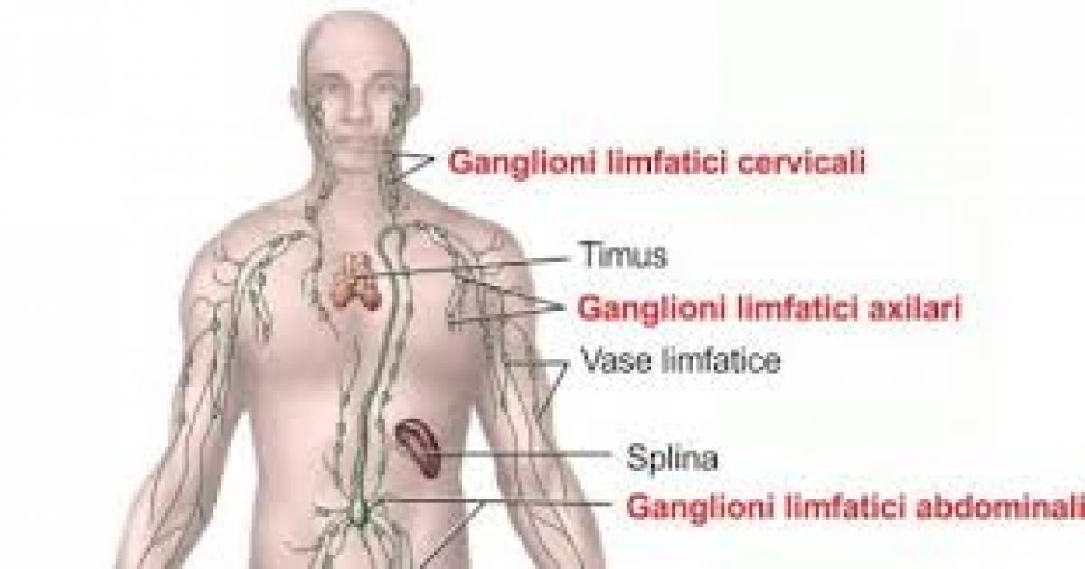 cancerul limfatic cauze cancerul pulmonar la femei