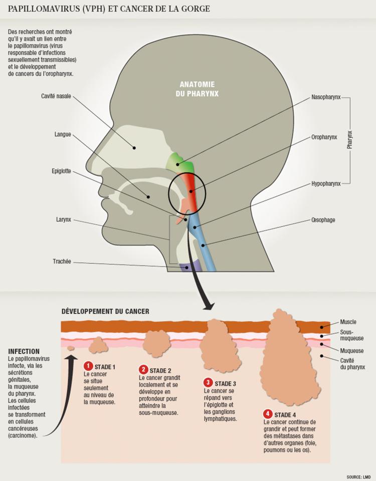 virus hpv et cancer de la gorge