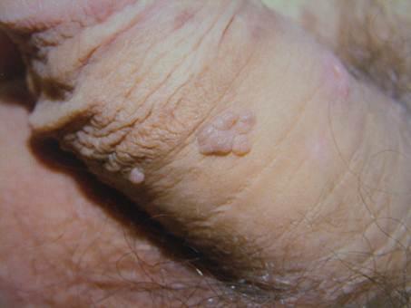condyloma acuminatum kenocs cancer pancreatic blog