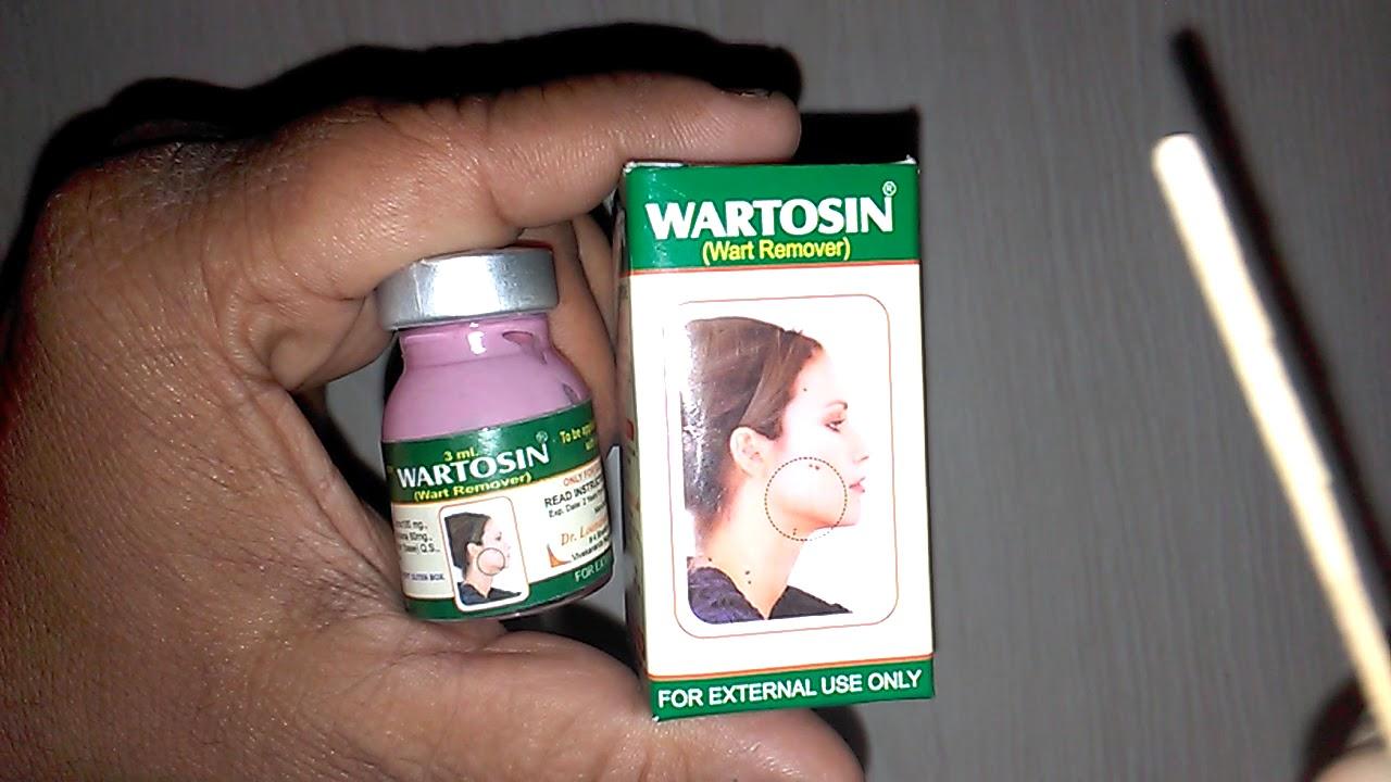 wart treatment ayurvedic medicine)