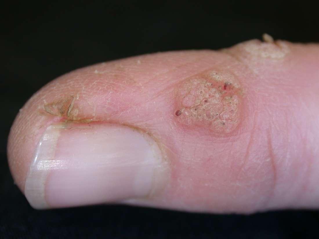 wart on foot bleeding)