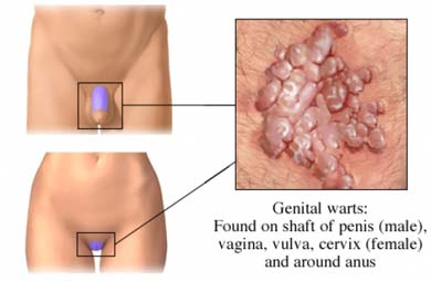 virusi genitali)