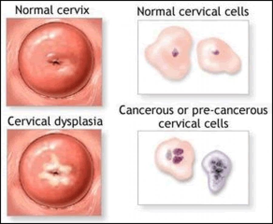papilloma virus lesione collo utero
