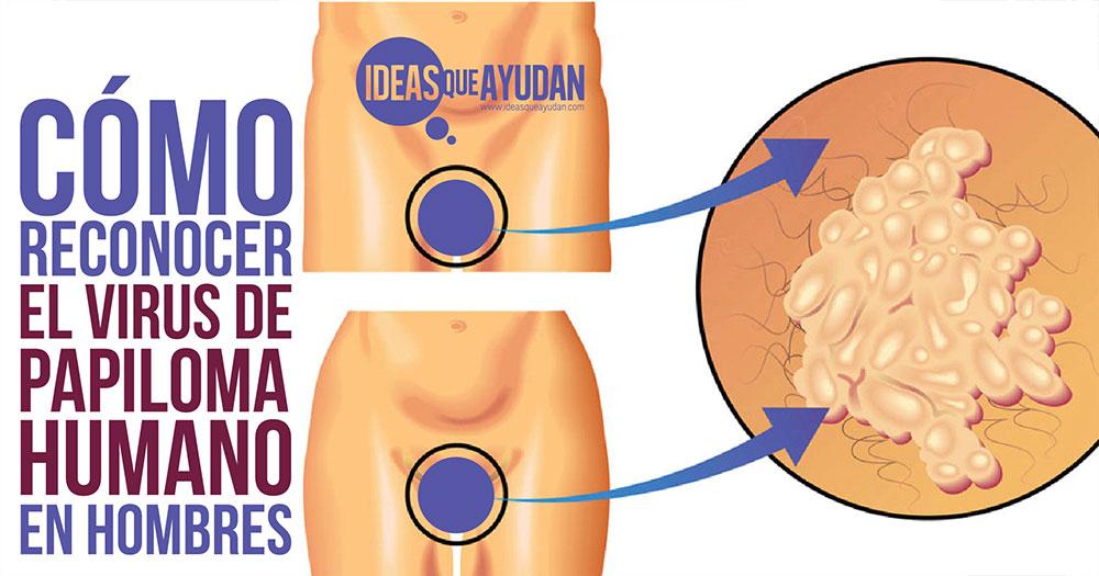 papiloma humano en hombres como se detecta