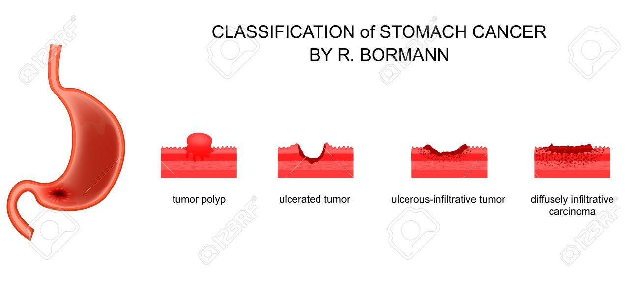 gastric cancer borrmann human papillomavirus verruca
