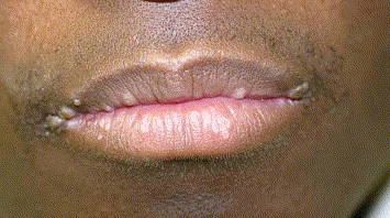 hpv on mouth lips)