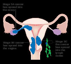 Hiperplazie endometrială atipică wiki