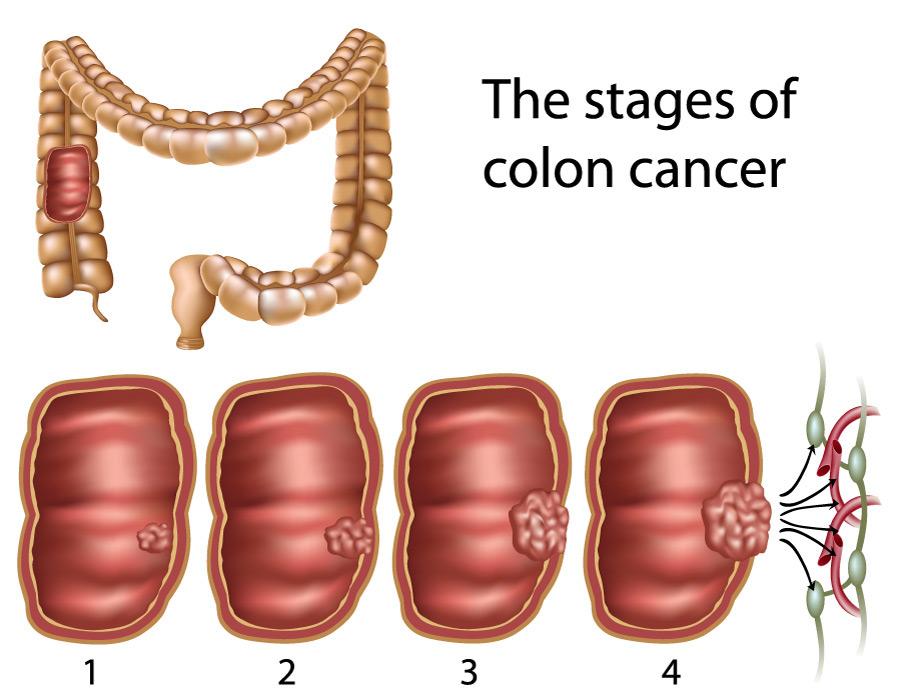 paraziti intestinali ciclide papilloma virus positivo alto rischio