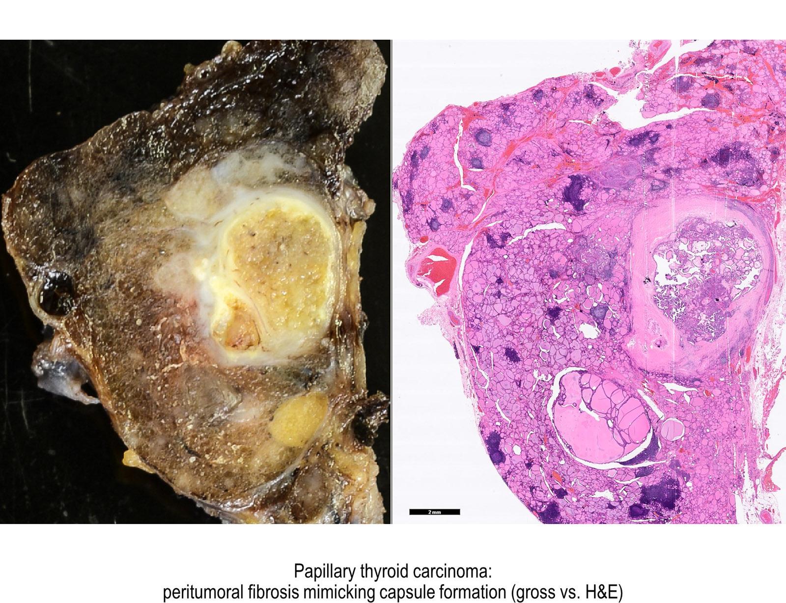 Definicion linfom adenom folicular