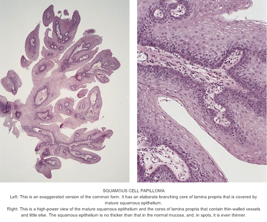 squamous papilloma def)