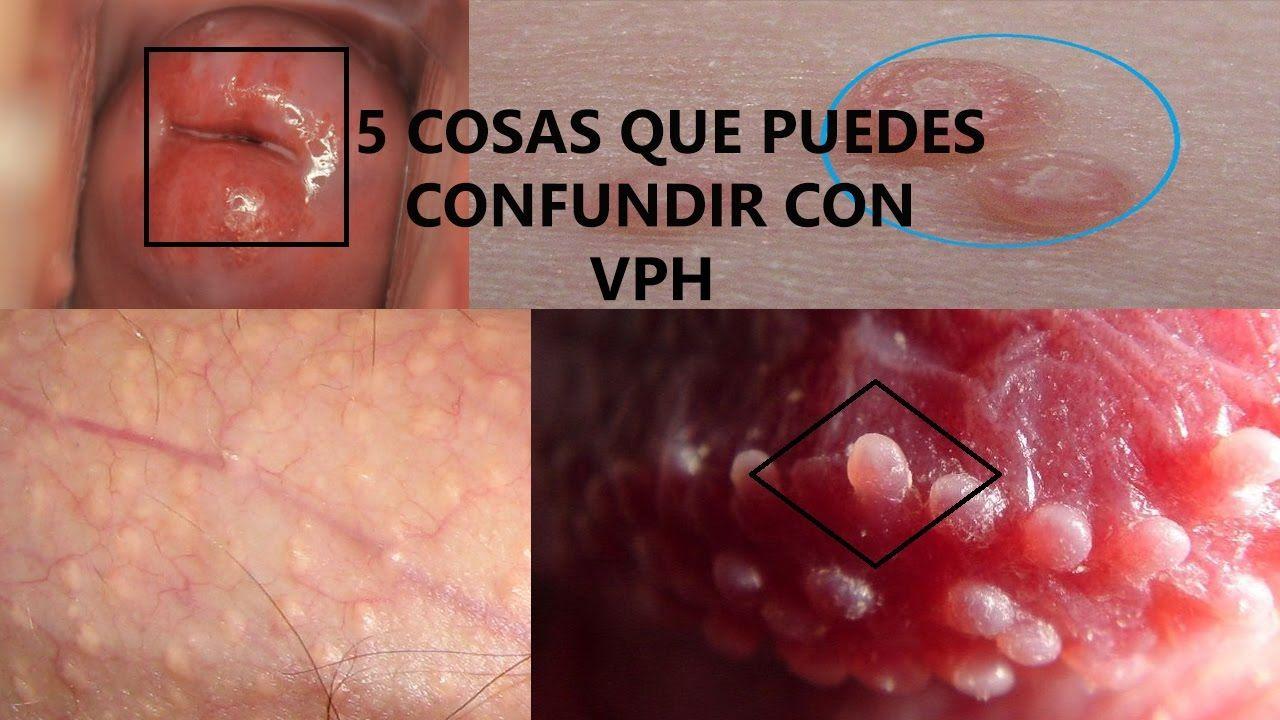 papiloma humano es herpes