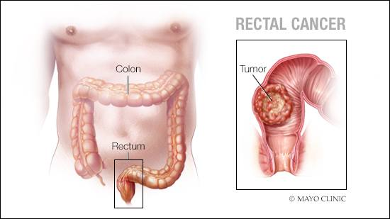 hpv in rectal cancer