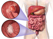 cancer du gros intestin stade 3)