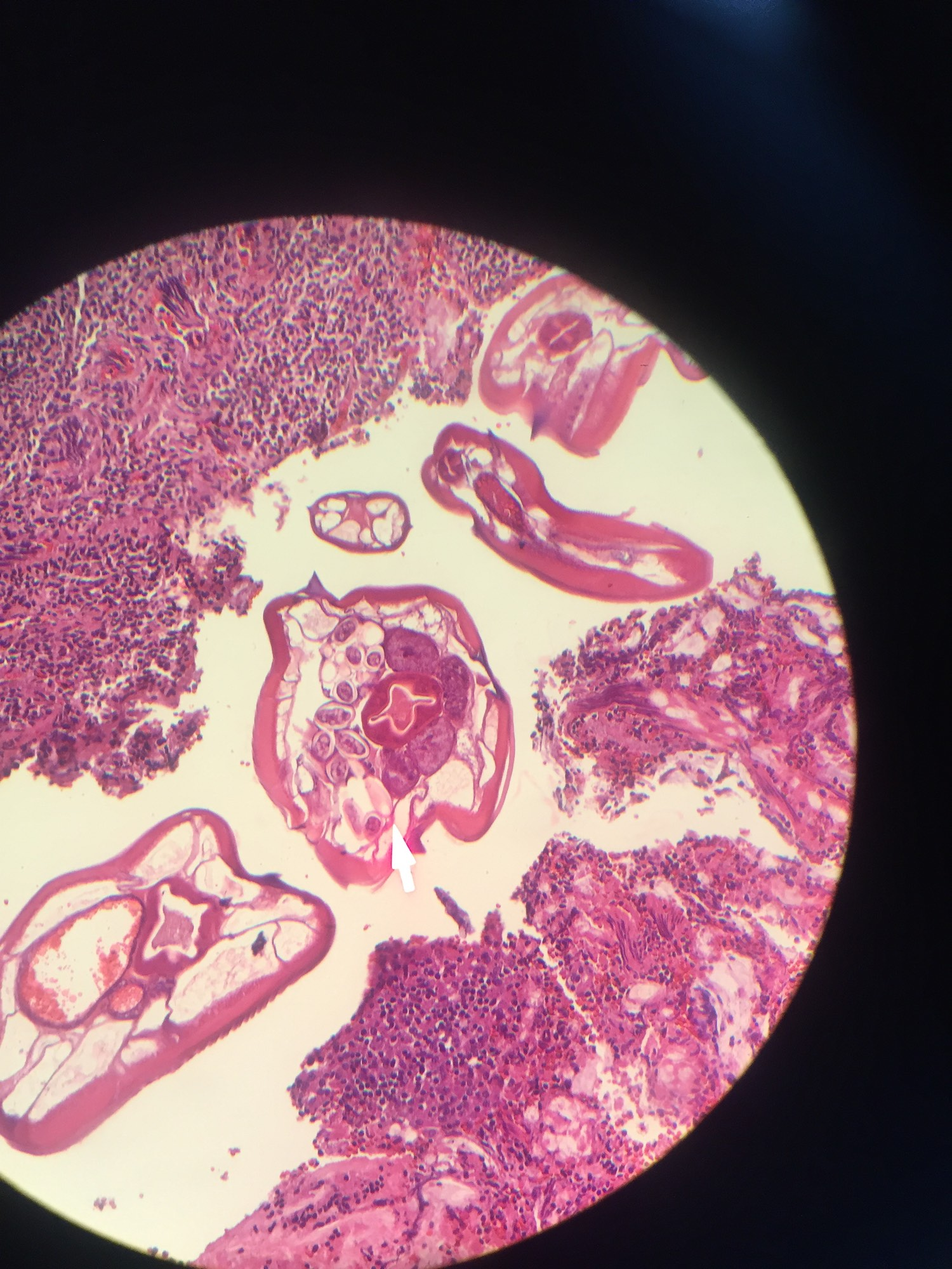 enterobius vermicularis histopathology)