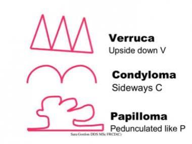 VERRUCA - Definiția și sinonimele verruca în dicționarul Engleză