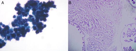 papiloma intraductal com atipia