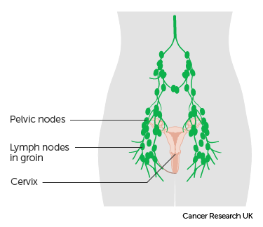 Fișier:Lymph node evenimente-corporate.ro - Wikipedia