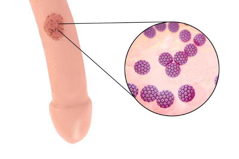 cancer cervical de papiloma humano en hombres eliminare il papilloma virus