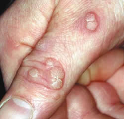 hpv warts vs pimples