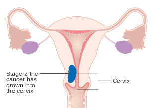uterine cancer and cervix)