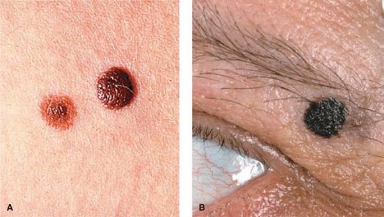 non-pigmented papilloma icd 10)