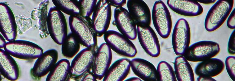 bacterii parazite que es lymphoma cancer