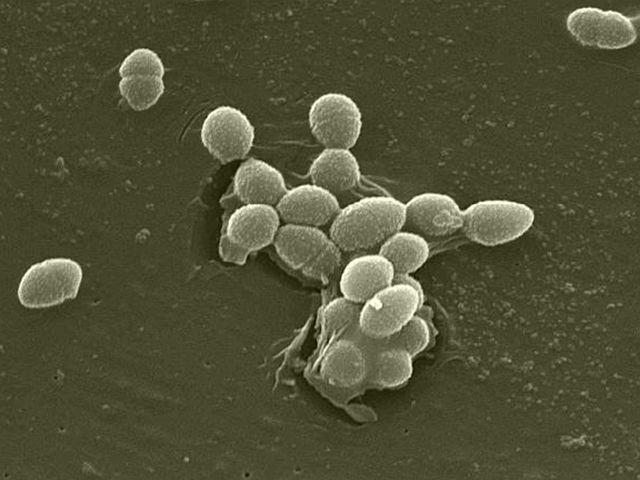bacterii sulfuroase