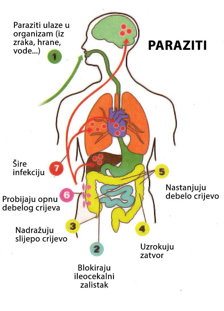 Detox Paraziti free mp3 download