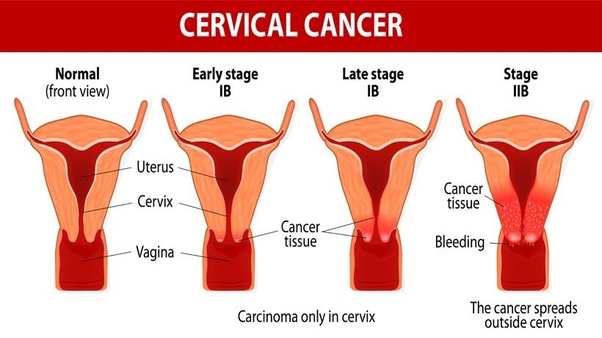 cervical cancer cost of treatment)