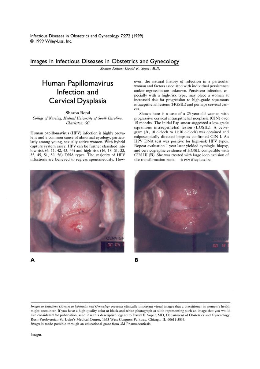 human papillomavirus infection dysplasia