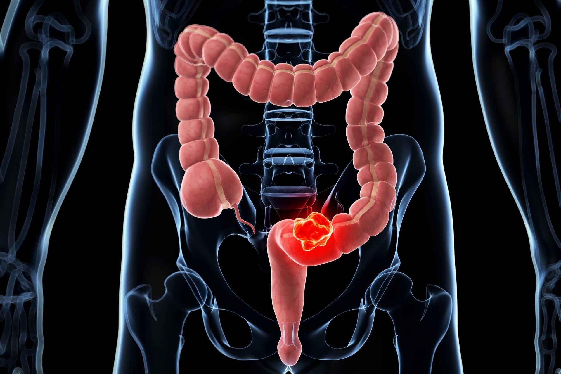 cancer colorectal jeune femme
