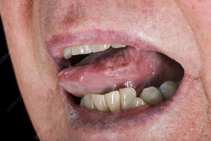 papilloma tongue)