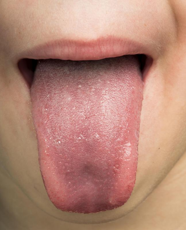 hpv on the tongue