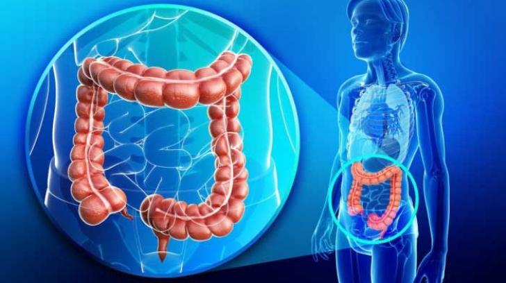 cancer la intestinul gros tratament que enterobiasis